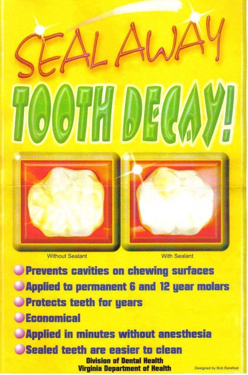 dental sealant visual