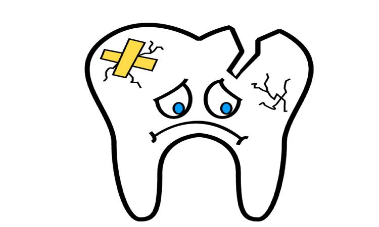broken tooth cartoon needs a dental crown or bridge